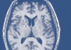 """Il razzismo si """"vede"""" nel cervello delle persone"""