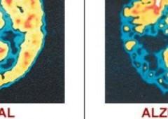 Alzheimer e Parkinson: super computer ne studierà le cure