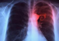 Tumore polmoni. Prima conferma legame diretto inquinamento