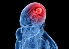 E' scientifico: la politica fa male al cervello