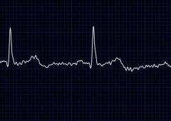 Uno smartwach che previene gli infarti? Il piano di Apple