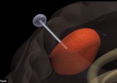 Tumori: scoperta nuova tecnica per estrarre le cellule malate dal cervello