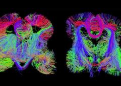 Dagli Usa arriva la prima mappatura del cervello